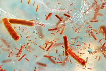 Antibiotic resistant bacteria and biofilm.