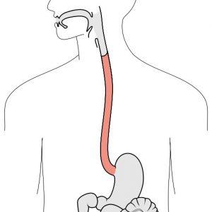 esophagus candida restore 3