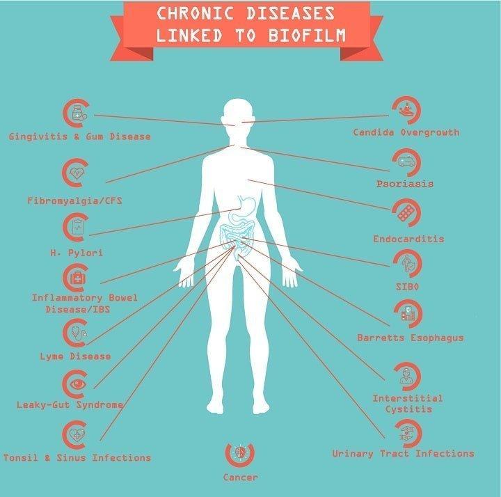 Biofilm Linked Diseases